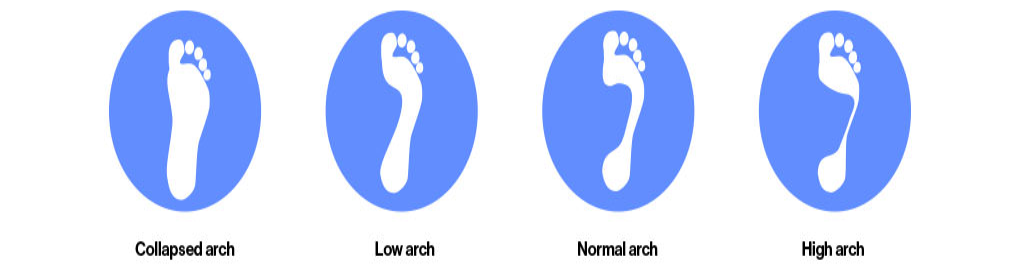 c790b6d24d59 High arch: often too rigid or inflexible which increases supination through  foot motion. This results in poor shock absorption, much of which is then  ...